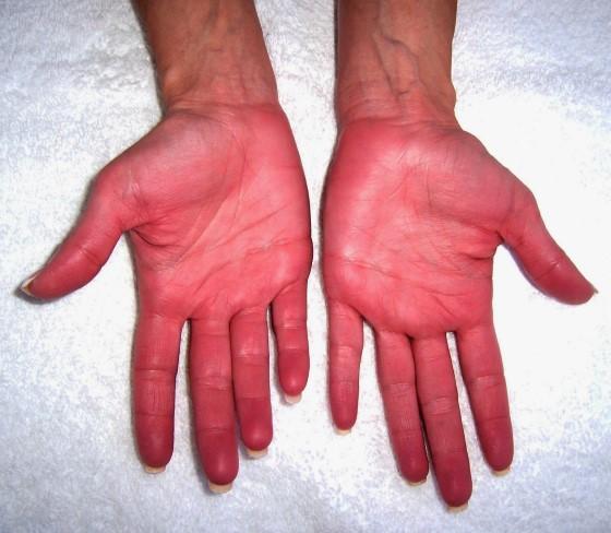 симптомы эритремии