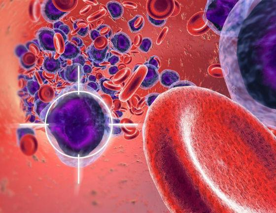 миелоидный лейкоз
