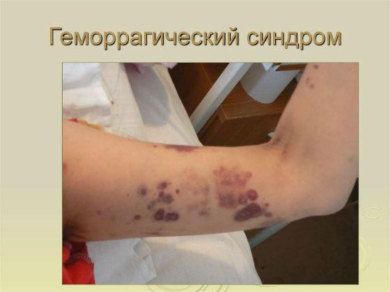 геморрагический синдром