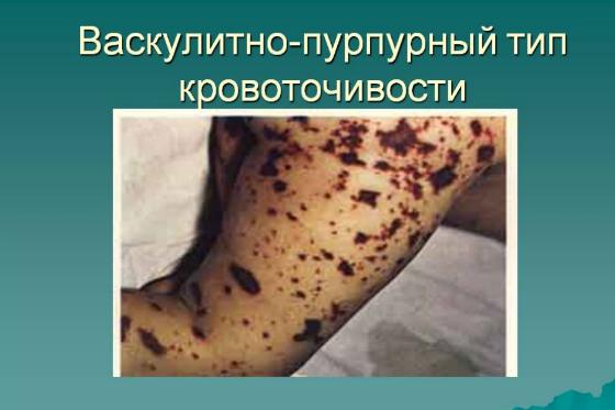 кровоточивость