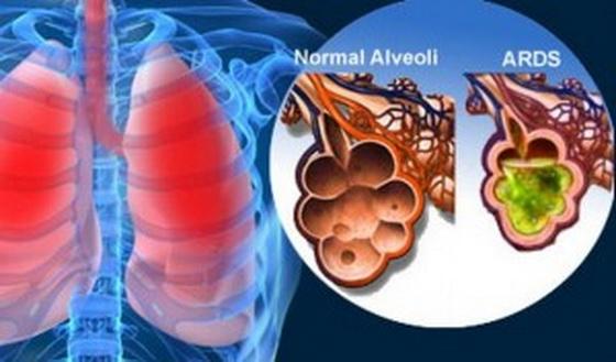 После переливания крови появилась аллергия thumbnail