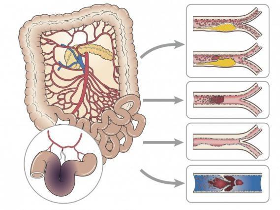 Эмболия и тромбоз мезентериальных сосудов
