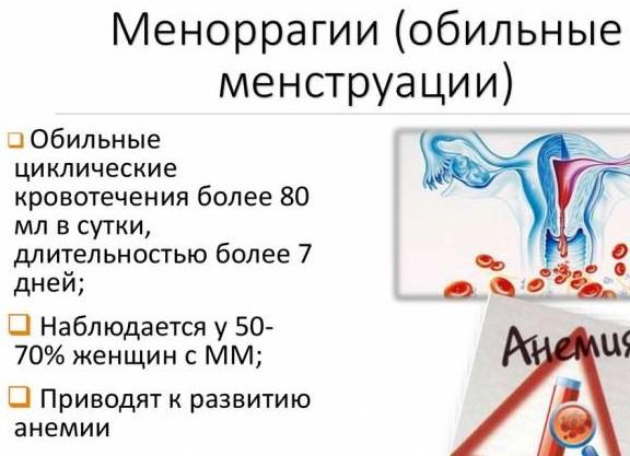 меноррагия