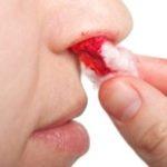 Типы кровоточивости
